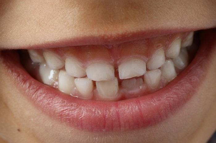 calendario della dentizione dei bambini